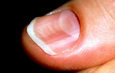 mjuka naglar
