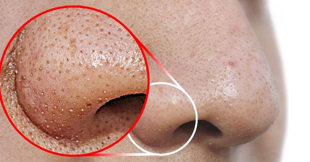bli av med pormaskar på näsan