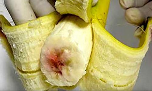 hiv blod i bananer