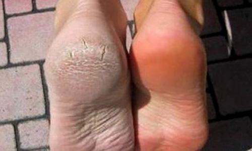torra fötter tips