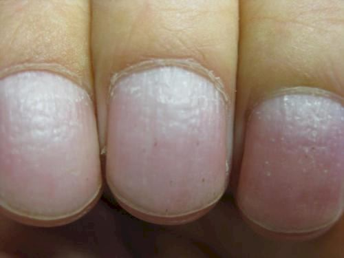 kan naglar avslöja sjukdom