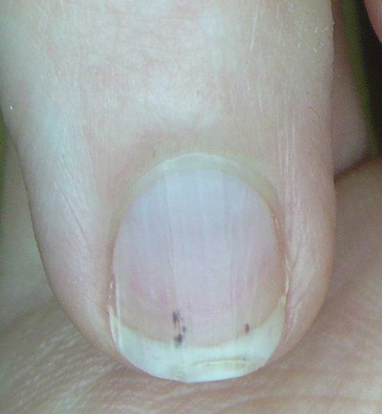 streck i nageln