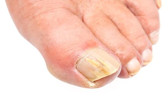 gropiga naglar sjukdom