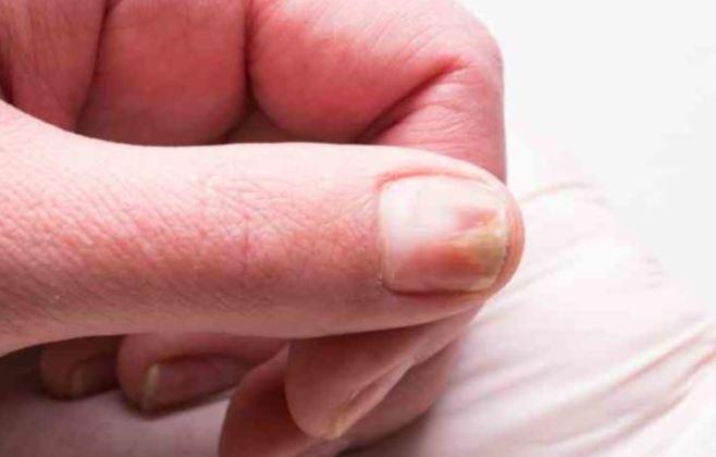 gropar i nageln