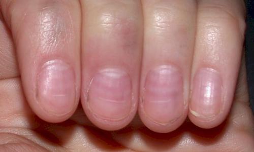 gula naglar symptom