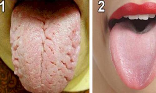 sprickor i tungan vitaminbrist