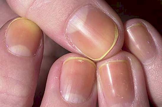 gula naglar syndrom